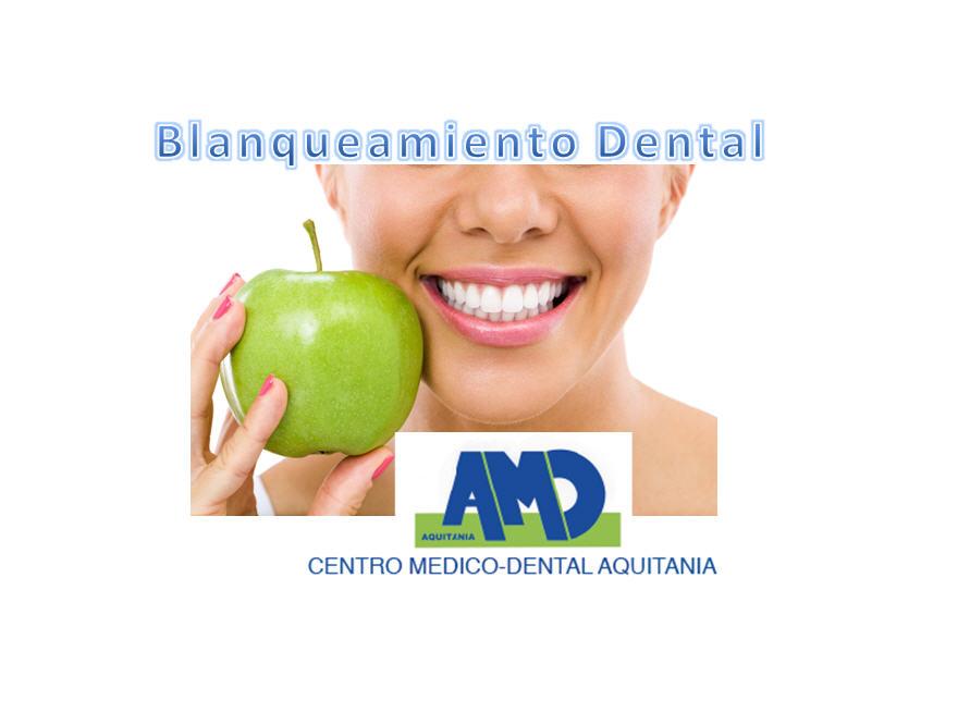 Balnqueamiento-Dental-Centro-Medico-Dental-Aquitania