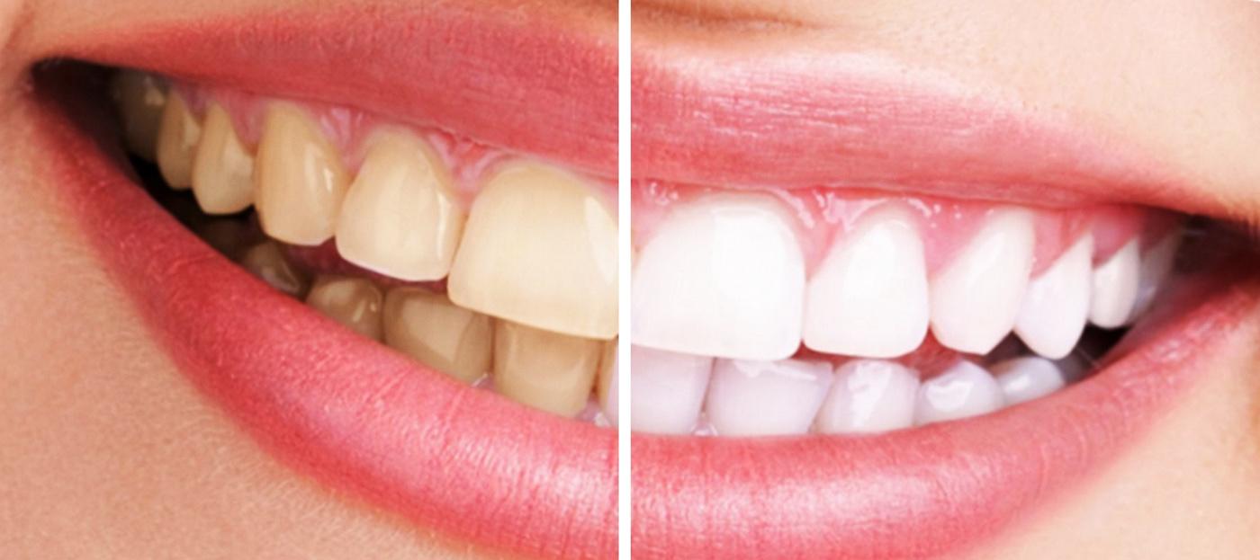 Blanqueamiento-dental-San-Blas-Canillejas-Vicalvaro