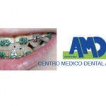 Brackets-Clinica-dental-Aquitania