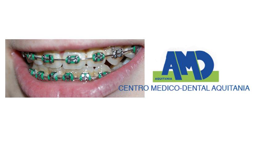 Brackets-Clinica-dental-Aquitania