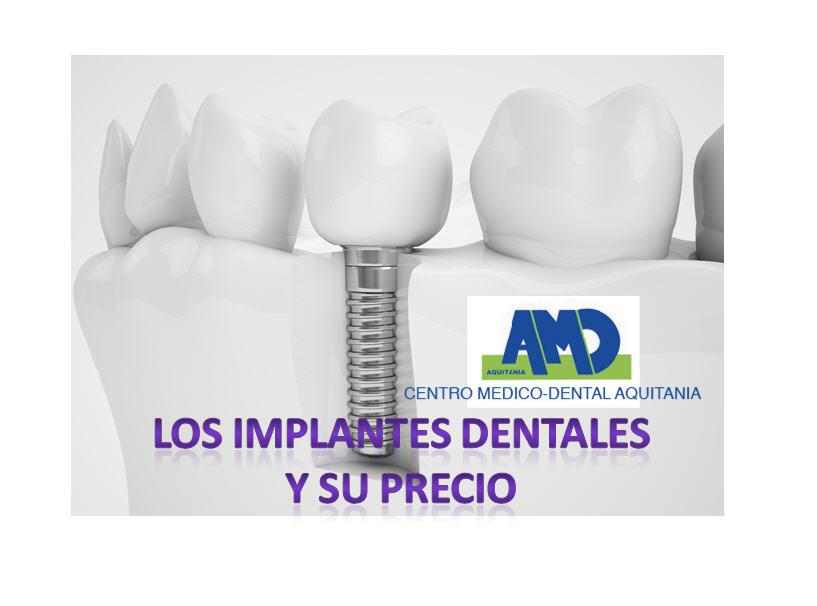 Implantes-dentales-precio-Aquitania