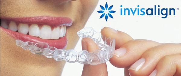 Orodoncia-invisalign-invisible-clinica-dental-aquitania