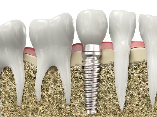 Clinica dental Las Rosas - Implantes