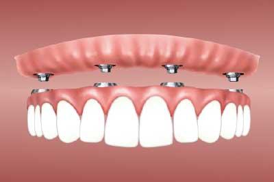 Cuidado de los implantes en Las Rosas, San Blas, Canillejas
