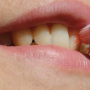 Tratamiento de la Gingivitis en Las Rosas