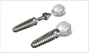 implante-dental-precio