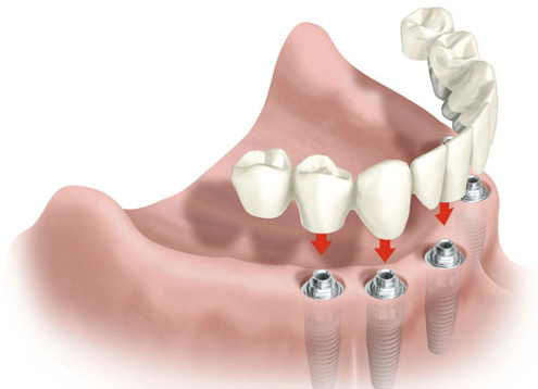 Implantes de Carga Inmediata - Las Rosas, Canillejas, San Blas