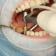 Las sobredentaduras sobre implantes: ¿En qué consisten?